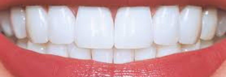 Parkview Dental Care
