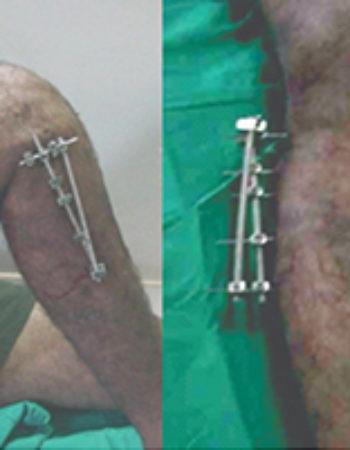 Best Orthopedic Surgeons | Orthopedic Hospital in Coimbatore | Ortho Doctors in Coimbatore | India